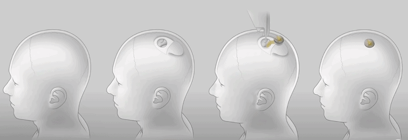 Elon Musk's Neuralink Exposed! All That You Need To Know About The Brain Implant Chip 4