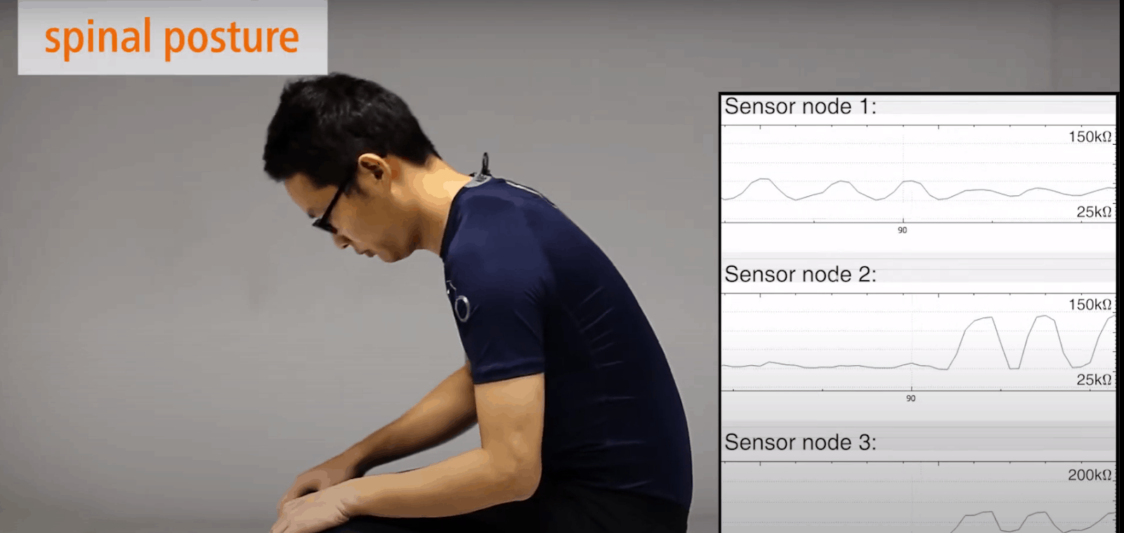 Spinal posture monitoring
